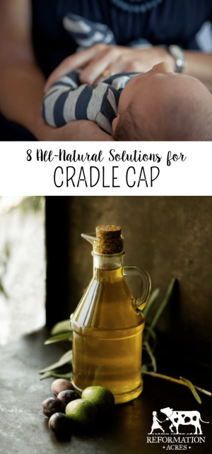 Here is an easy, effective, and cheap all-natural cradle cap treatment that worked well for my babies.